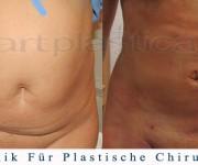 Fettabsaugung - 1 Tag nach der Operation - Artplastica - Beauty Group