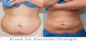 Fettabsaugung (Liposuktion) - Beauty Group - Artplastica