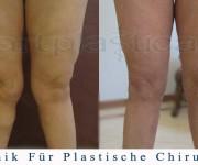 Fettabsaugung-Knie - Artplastica - Beauty Group