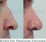 Nasenkorrektur mit Transplantation von Knorpel vom Ohr.