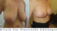 Brustverkleinerung -  Bilder vor und nach der Operation