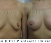 Brustvergrößerung - Bilder vor und nach der Operation - Beauty Group Polen