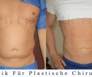 Fettabsaugung (Liposuktion) - Beauty Group - Artplastica