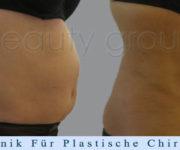 Fettabsaugung (Liposuktion) - Beauty Group