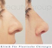 Nasenkorrektur - Beauty Group