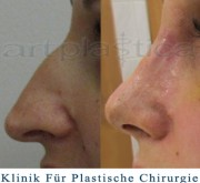 Nasenkorrektur - 10-Tage nach der Operation - Beauty Group - Artplastica