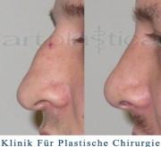 Nasenkorrektur  (Rhinoplastik) galerie