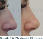 Nasenkorrektur - Artplastica