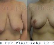 Beauty Group-Artplastica -Brustreduktion - 2 Monate nach der Operation