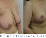 Beauty Group-Artplastica -Brustreduktion - 2 Monate nach der Operation