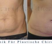Bauchdeckenstraffung - vorher, nachher bilder - Beauty Group - Artplastica