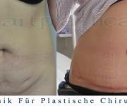 Bauchdeckenstraffung - vorher, nachher bilder
