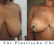 Brustreduktion - ein paar Tage nach der Operation - Beauty Group