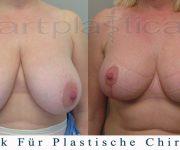 Brustverkleinerung - 6 Wochen nach der Operation