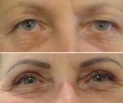 Augenlider nachher und vorher photos galerie