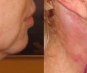 Kinn und Hals korrektur photos vorher und nachher