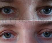 Augenliderkorrektur nachher und vorher photos galerie