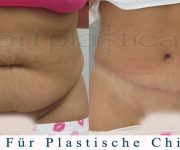 Abdominoplastik -  photo 3 Monate nach der Operation - Beauty Group - Polen