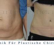 Bauchdeckenstraffung - vorher, nachher - Beauty Group - Artplastica