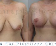 Beauty Group - Artplastica - bruststraffung - einen Monat nach der Operation