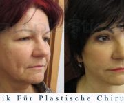 Beauty Group - Artplastica - facelifting, augenliderkorrektur