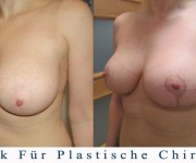 Bruststraffung (nach 2 monaten) - Beauty Group - Artplastica