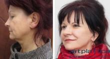 Face – und Halslifting, Oberlidkorrektur, Lippenvergrößerung