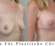Brustvergroesserung mit brustplastik - 3 Wochen nach der Operation - Beauty Group - Artplastica