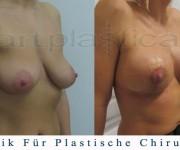 Brustvergroesserung mit brustplastik - Ein paar Tage nach der Operation