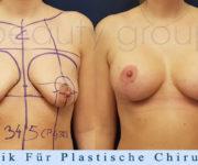 Brustvergroesserung mit brustplastik - Beauty Group