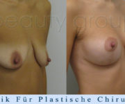 Brustvergroesserung mit brustplastik - 2 Monate nach der Operation - Beauty Group