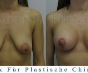 Brustvergroesserung mit brustplastik - Beauty Group - Artplastica
