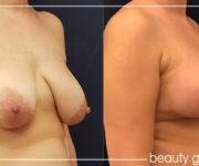 Brustvergrößerung mit Brustplastik galerie