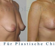 Brustvergroesserung mit brustplastik