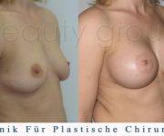 Brustvergrößerung - Bilder vor und nach der Operation - Beauty Group