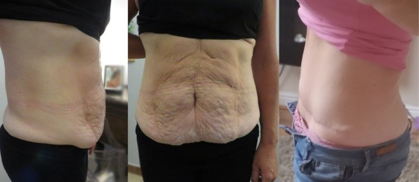 Abdominoplastik - Bilder vor und nach der Operation