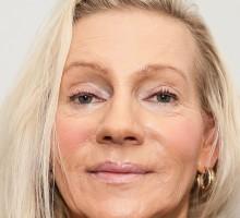Juvederm Voluma und Botox