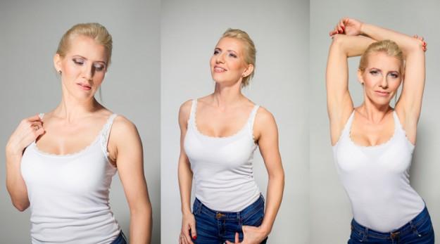 Anna - Brustvergrößerung und Oberlidkorrektur