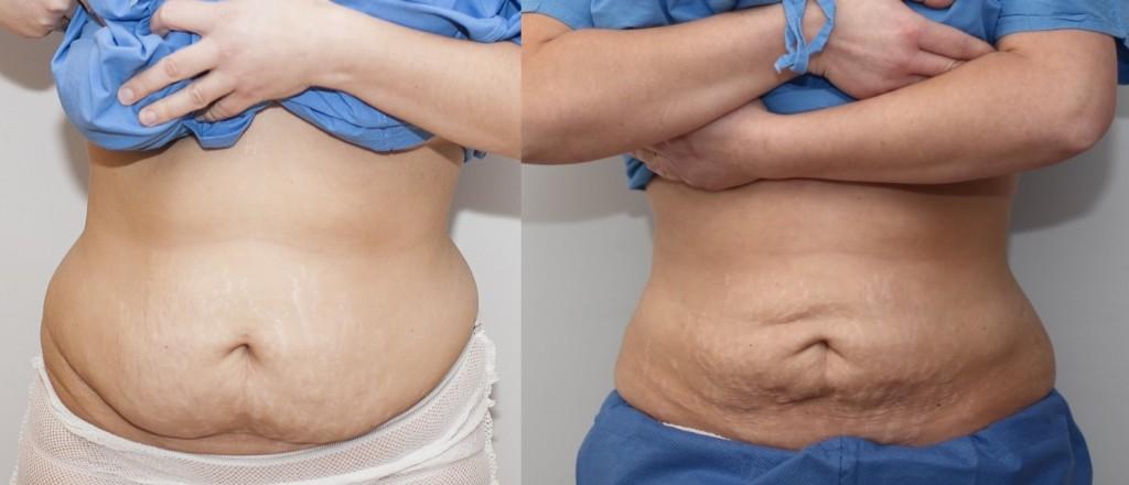 vor und nach der Fettabsaugung - vorne